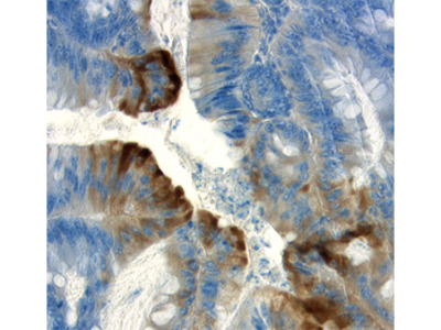 Human APC C-Terminus Antibody