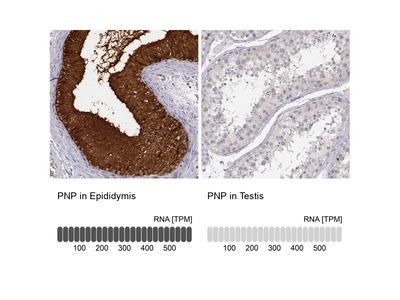 Anti-PNP Antibody