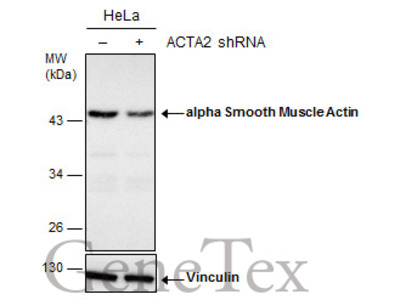 Anti-alpha Smooth Muscle Actin antibody