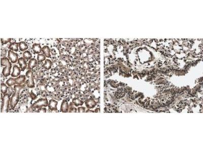 Flt-3 / Flk-2 / CD135 Antibody (12B6)