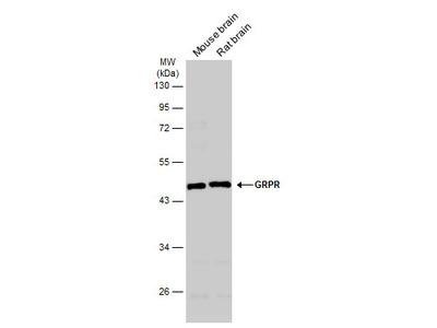 Anti-GRPR antibody [C1C2], Internal