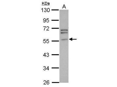 Anti-Peripherin antibody