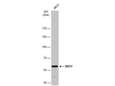 Anti-MEFV antibody [N3C1], Internal