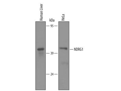 Human NDRG1 Antibody