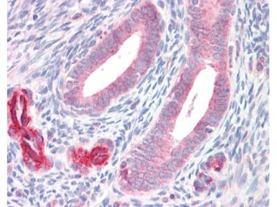 Anti-ADAM33 antibody [C2C3], C-term