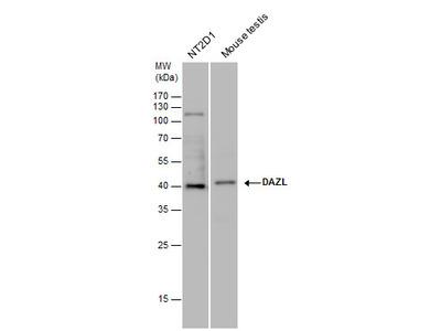 Anti-DAZL antibody