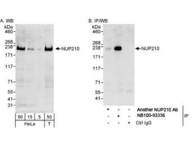 Rabbit Polyclonal NUP210 Antibody