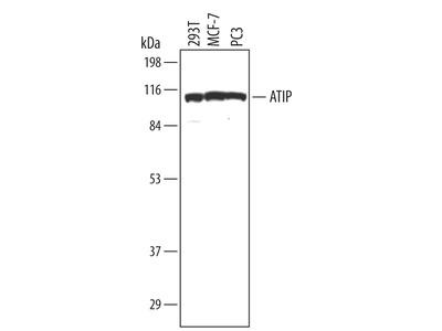 ATRIP Antibody