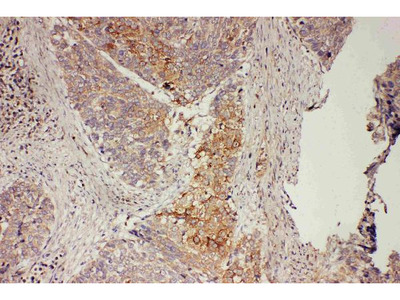 Anti-GRB7 Antibody