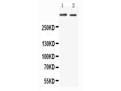 Anti-Huntingtin Antibody