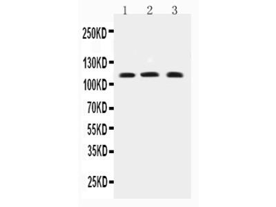 Anti-TRPC4 Antibody
