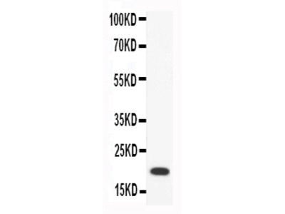 Anti-Macrophage Inflammatory Protein 4/CCL18 Antibody Picoband