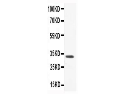 Anti-CCL3/Macrophage Inflammatory Protein 1 alpha Antibody Picoband