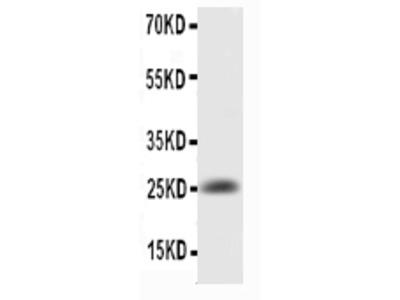 Anti-IL6 Antibody Picoband