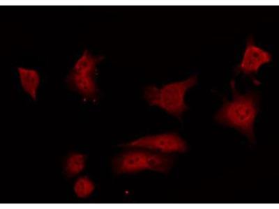 Anti-GRF1 (phospho Tyr1105) antibody