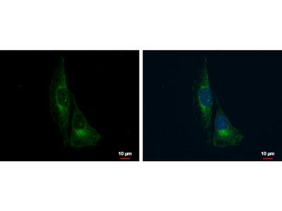 Anti-TrkC antibody