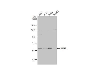 Anti-AKT2 antibody