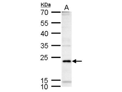 Anti-ICOS antibody
