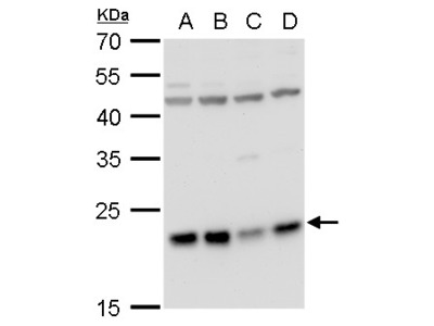 Anti-LZIC antibody