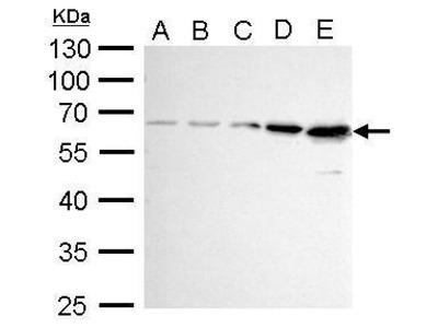 Anti-AKT antibody