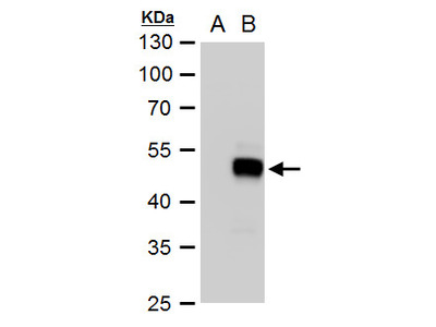 Anti-SOX18 antibody
