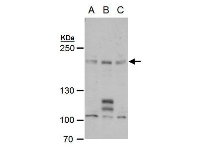 Anti-PCF11 antibody