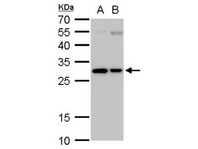 Anti-SUN1 antibody