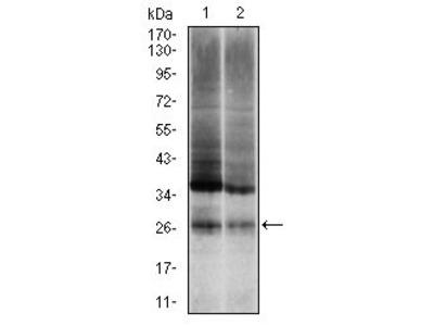 Anti-Ubiquitin B antibody [3C12]