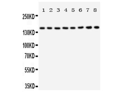 Anti-Hamartin / TSC1 antibody