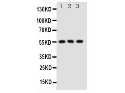 Anti-GLUT5 antibody