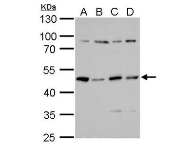 Anti-PKA R2 antibody