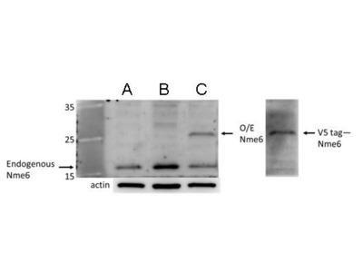 Anti-nm23-H6 antibody
