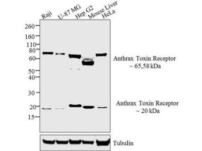 Anti-TEM8 antibody