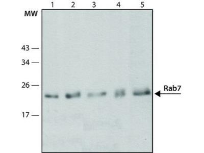 Anti-RAB7A antibody [Rab7-117]