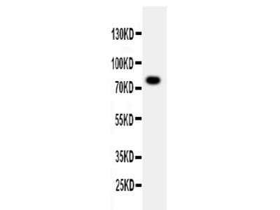 Anti-PPP1R15B antibody