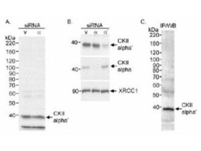 Anti-CKII alpha antibody