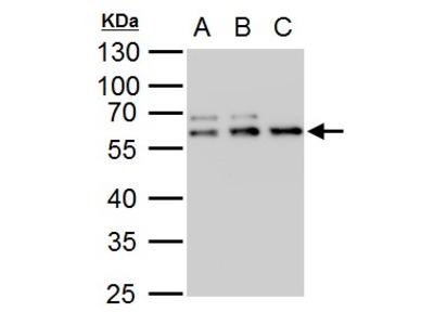 Anti-TDG antibody