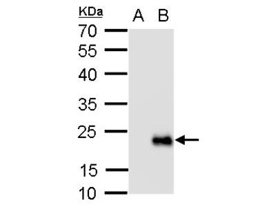 Anti-RGS19 antibody