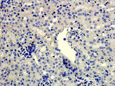 SNAIL antibody