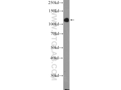 ZC3H7B antibody