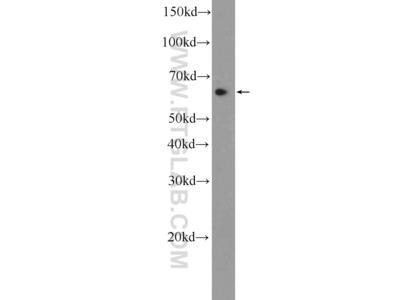 CCDC102A antibody