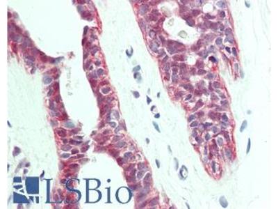 HACD1 / PTPLA Antibody