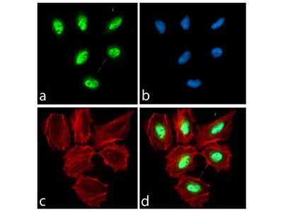 PAX3 Antibody (16HCLC), ABfinity™ Rabbit Oligoclonal