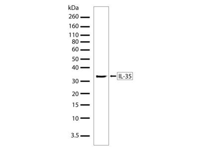 IL-35 Recombinant Polyclonal Antibody (6HCLC)