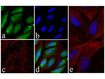 AKT1 Antibody (43HCLC), ABfinity™ Rabbit Oligoclonal