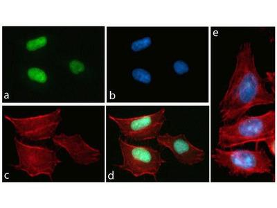 Phospho-Tau pThr231 Monoclonal Antibody (1H6L6), ABfinity Rabbit Monoclonal