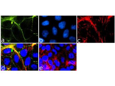 MARVELD2 Recombinant Rabbit Monoclonal Antibody (54H19L38)