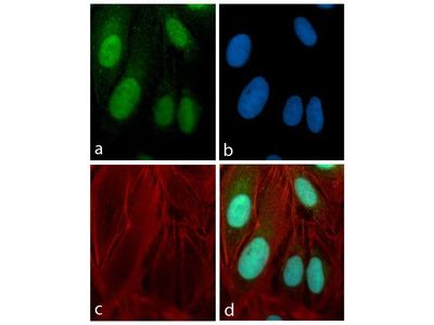 PAX3 Antibody (16H22L10), ABfinity™ Rabbit Monoclonal