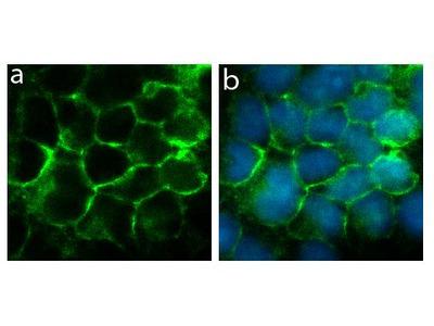 Connexin 40 Antibody (5HCLC), ABfinity™ Rabbit Oligoclonal