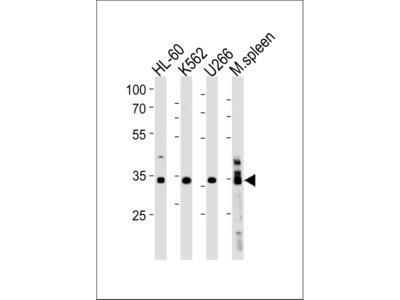 GFI1B Polyclonal Antibody